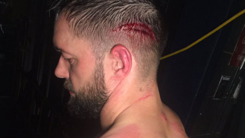 Finn Balor cut open from RAW angle, WWE stars at the 2017