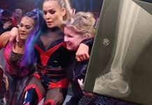 WWE Superstar Natalya posts X-Ray of her ankle injury